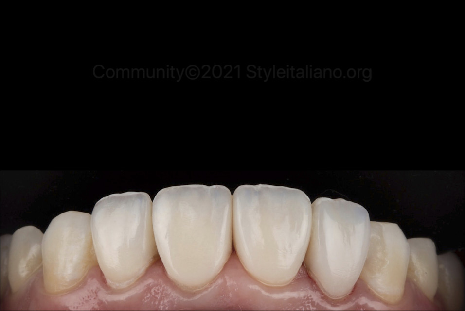 composite indirect restorations right after cementation style italiano styleitaliano community
