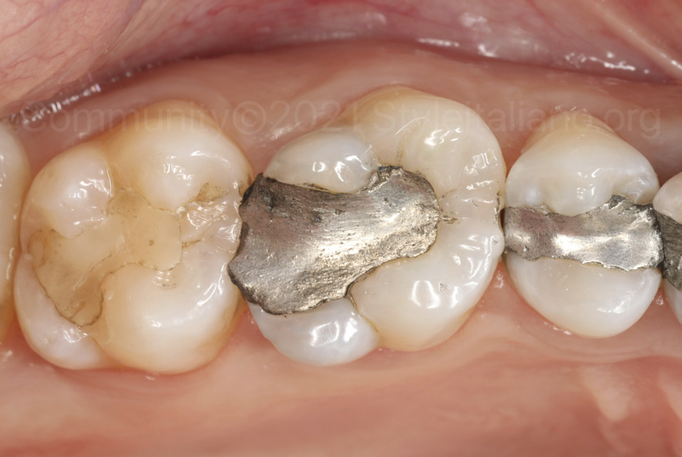 style italiano styleitaliano Managing contact points in posterior direct restorations