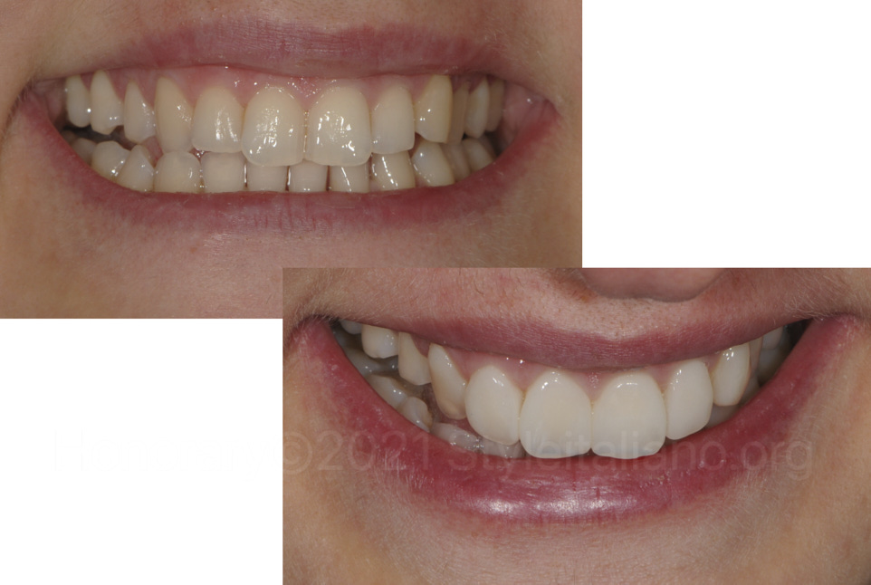 styleitaliano style italiano Smile makeover with direct composites: looking for good compromises