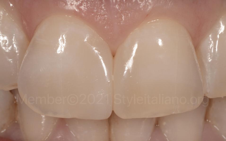 style italiano styleitaliano Single mass diastema closure