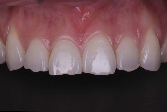 Post-orthodontic direct incisal lengthening