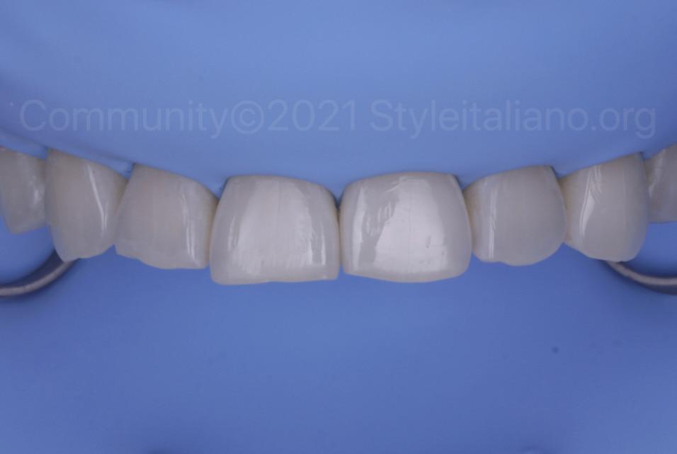 style italiano Post-orthodontic direct incisal lengthening