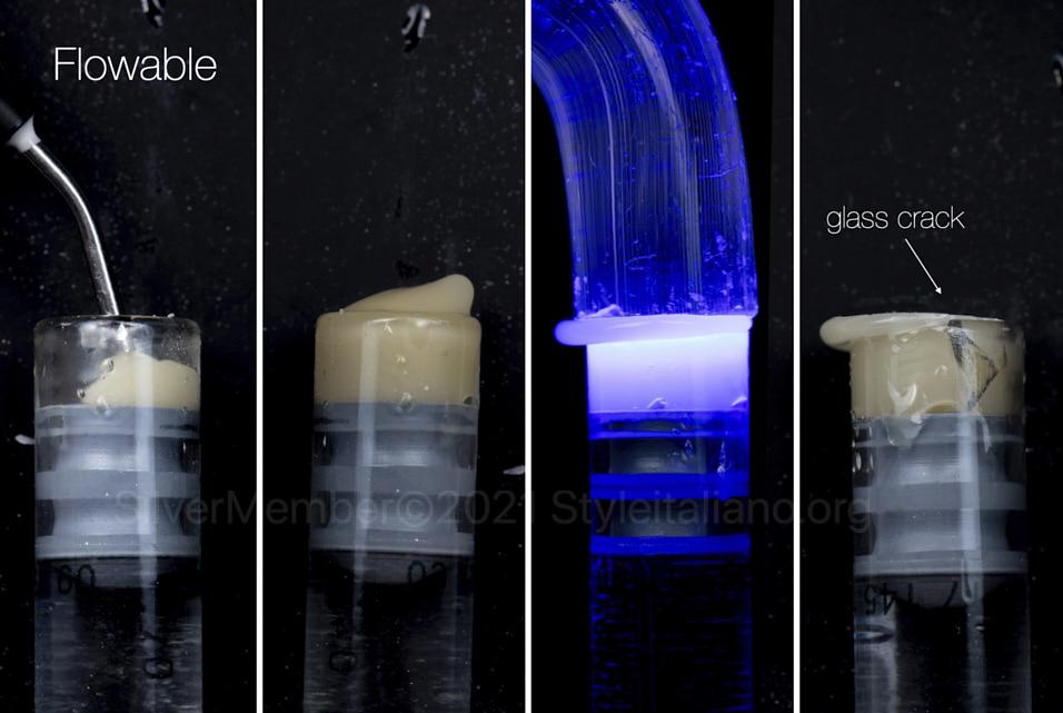 Composite polymerization shrinkage style italiano styleitaliano 3M clinical case