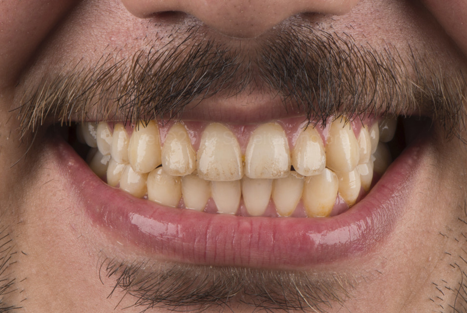smile with yellow and stained teeth style italiano styleitaliano