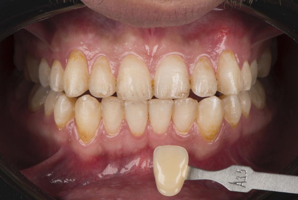 nitial dental A3.5 shade before whitening styleitaliano style italiano