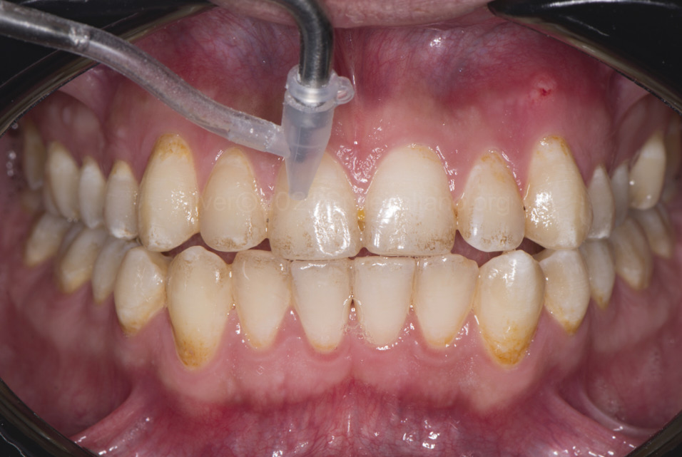 sandblasting of teeth to remove stains without drilling style italiano styleitaliano