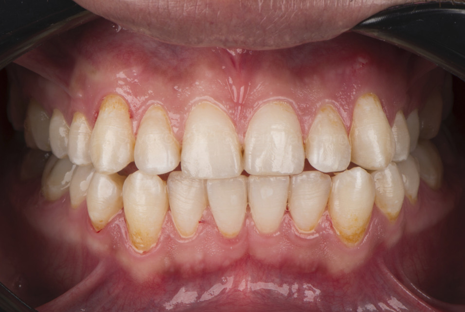 result after air-polishing to remove stains from teeth style italiano styleitaliano
