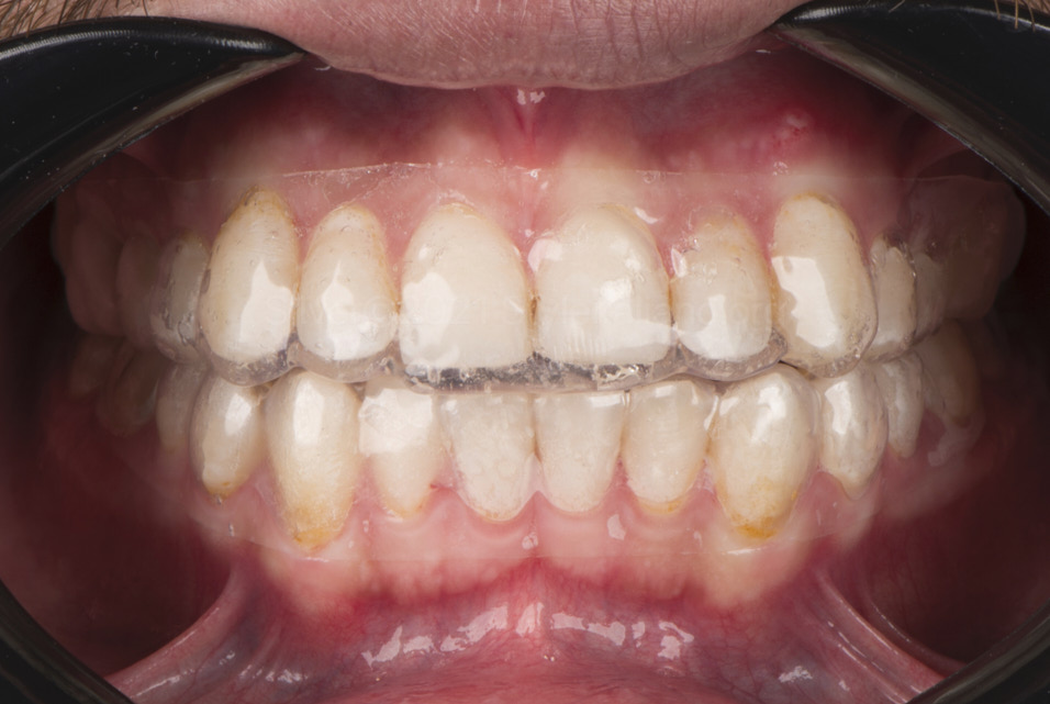 fitting of bleaching trays inside the mouth style italiano styleitaliano