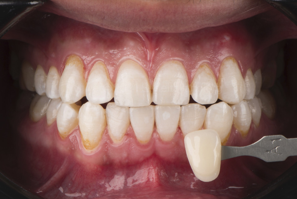 color check after dental bleaching styleitaliano style italiano