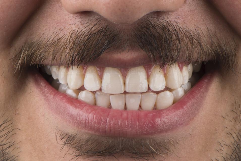 smiling after dental whitening style italiano styleitaliano