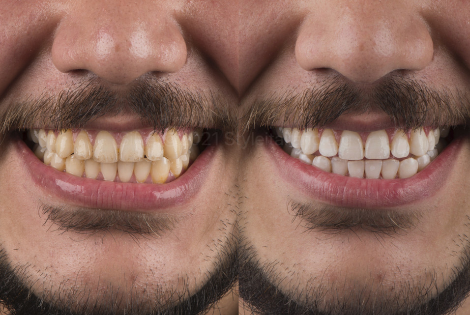 before and after tooth whitening style italiano styleitaliano
