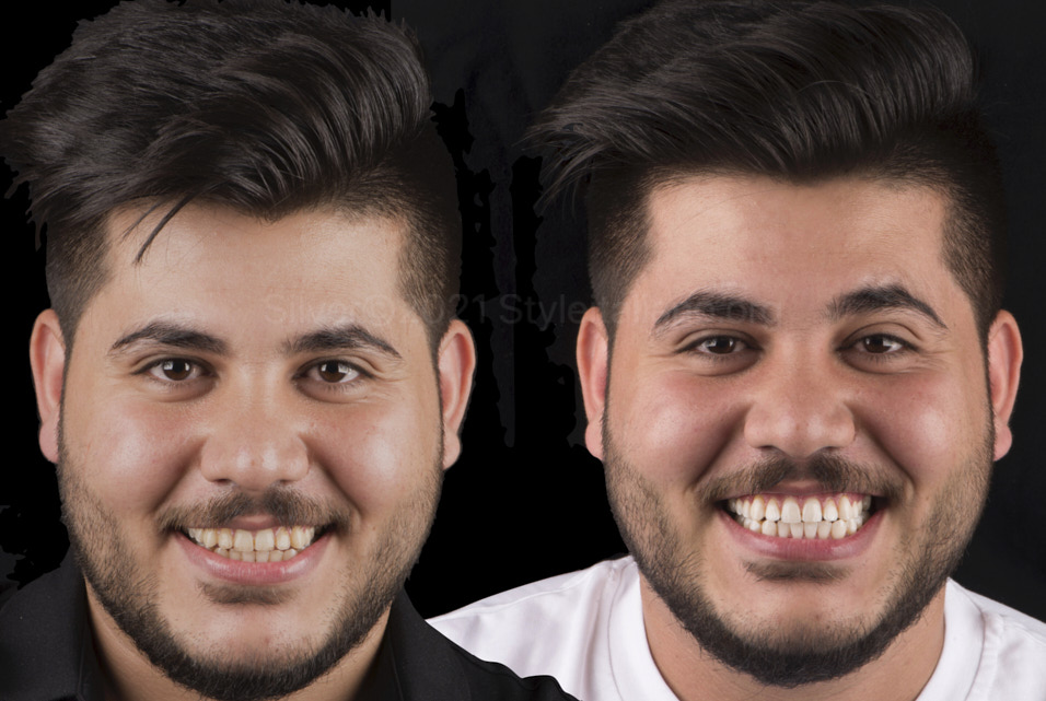 before and after stain removal and dental whitening styleitaliano style italiano