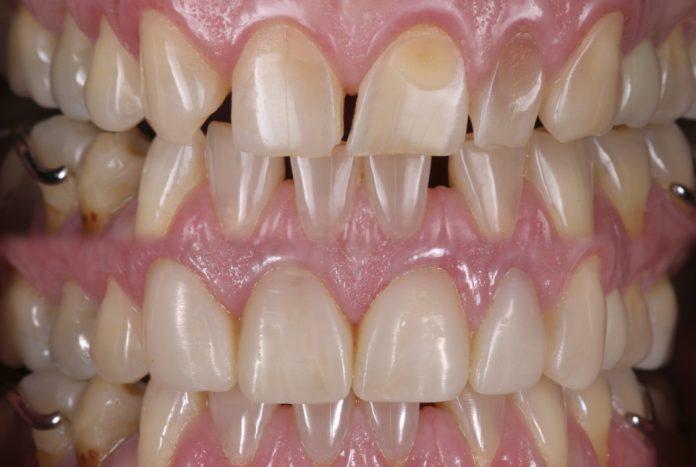 Essential Shape.The key to a tooth-like restoration style italiano styleitaliano