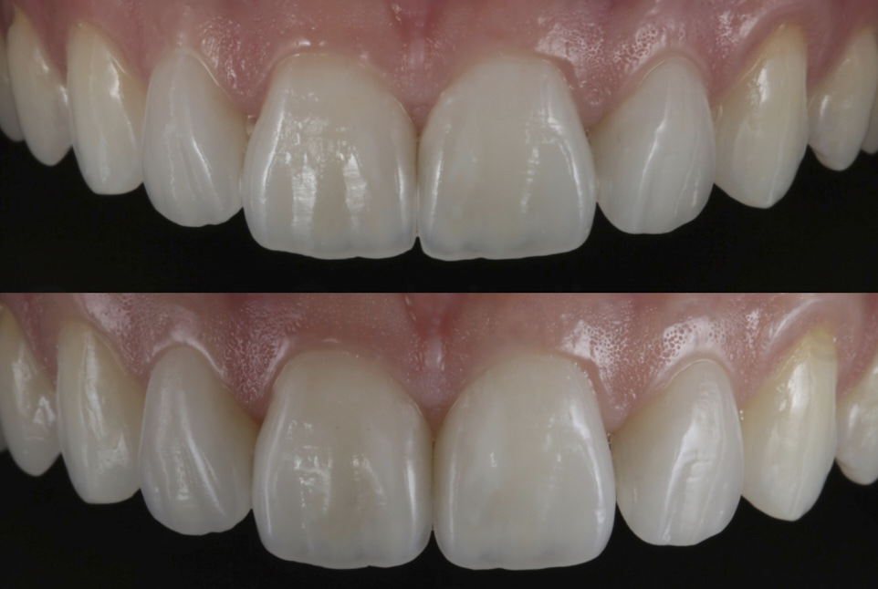 two shapes for ceramic veneers showing different outcomes style italiano styleitaliano