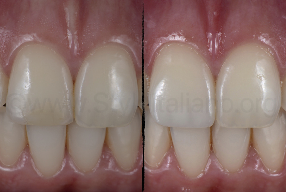 before and after replacement of composite restoration to change tooth shape