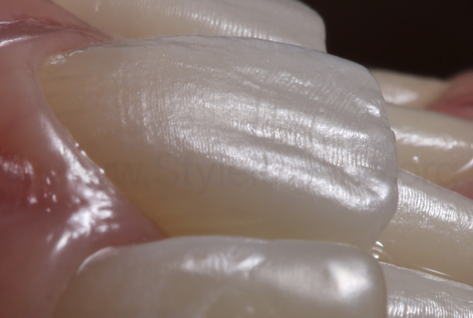 highly textured central incisor