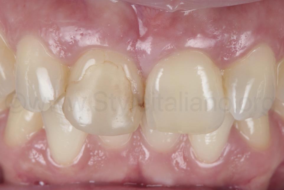 old infiltrated composite restoration on upper central incisor