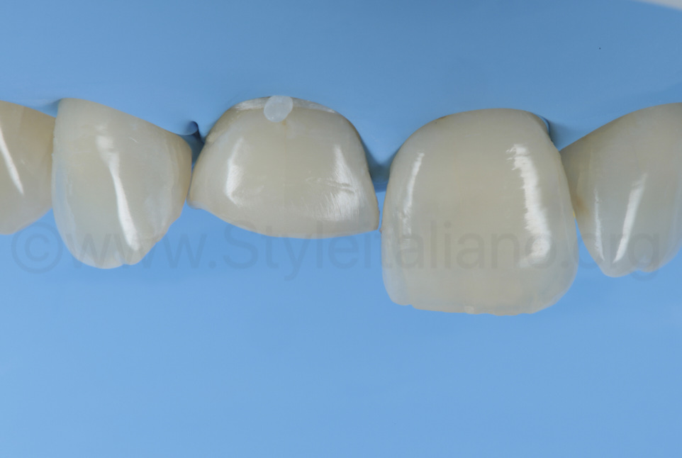 prepared and clean class IV cavity