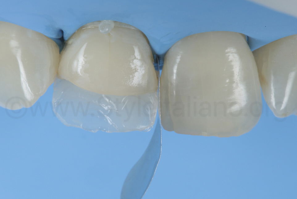 proximal sectional matrix for incisor outlining with composite