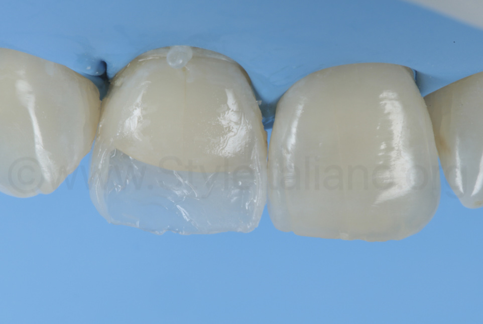 composite on palatal and proximal for class IV cavity filling
