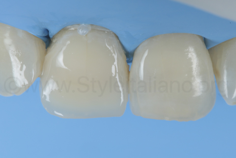 raw composite restoration of tooth 11