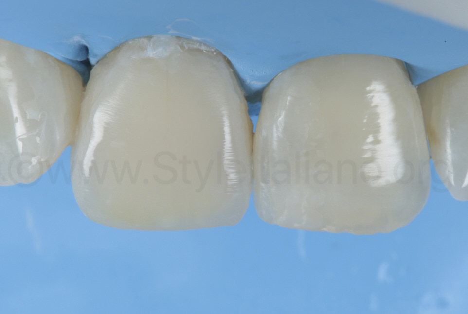 cured composite restoration on upper right central incisor