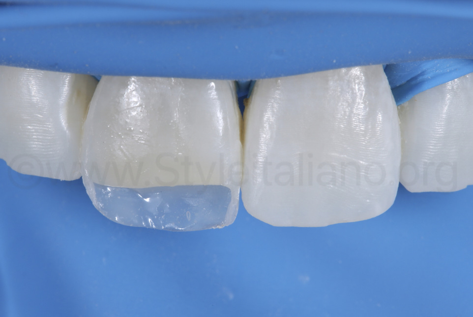composite box for layering of restoration on central incisor