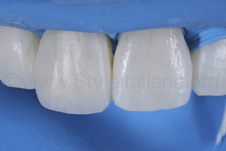 polymerized composite before finishing procedures