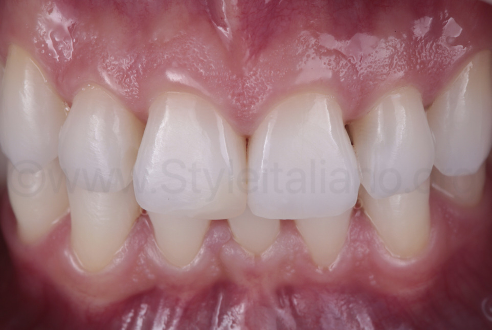 central incisors before shape modification