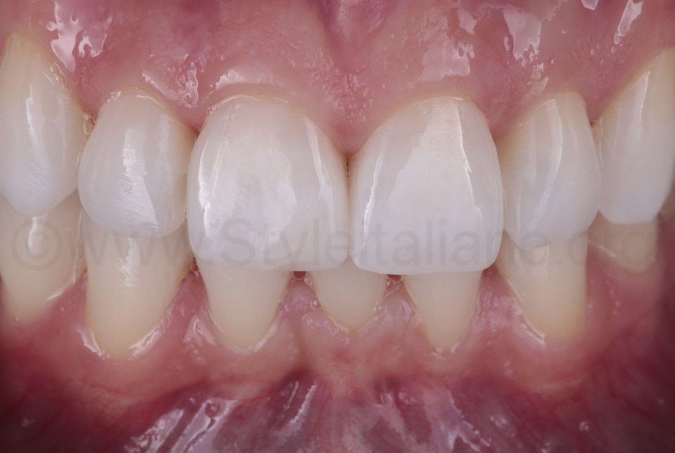 teeth after closing black gingival triangles and shape modification