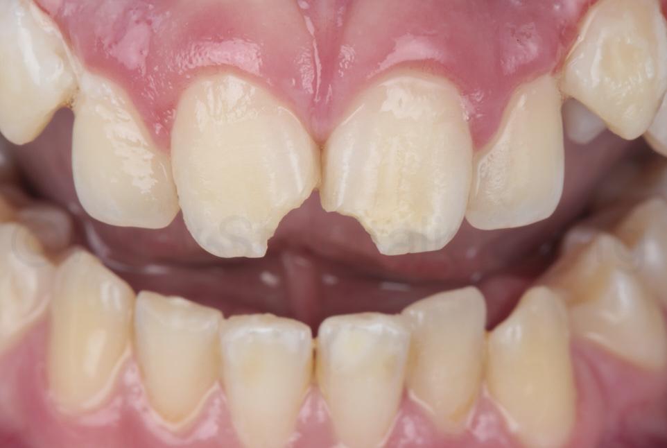 broken teeth of young kid