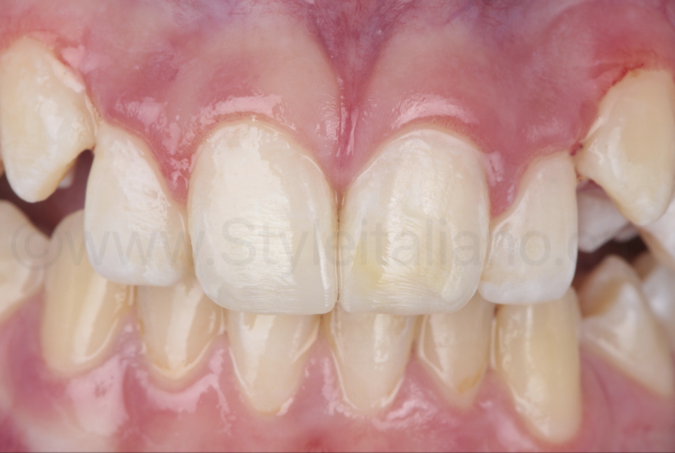 composite restorations of class IV cavities on young kid