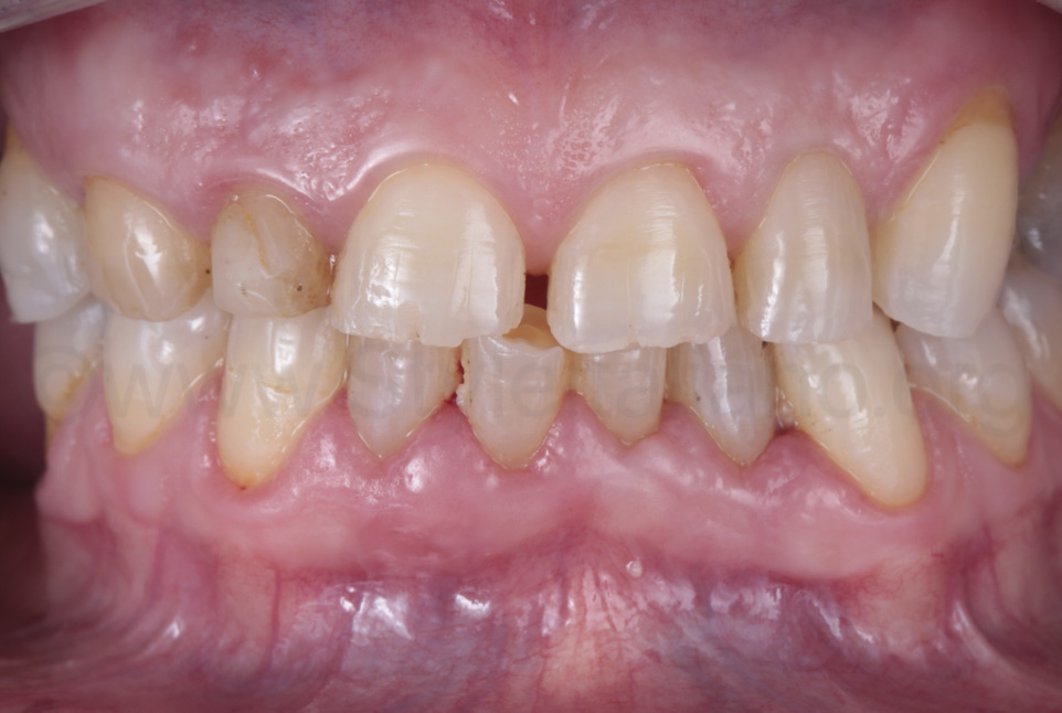 patient with tooth wear on front teeth