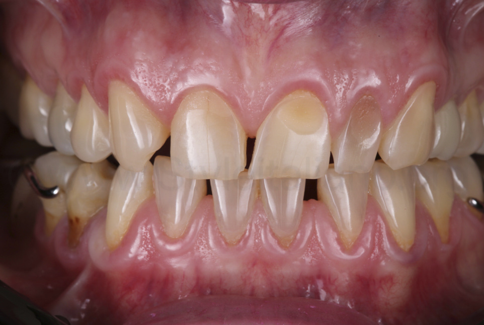 multiple cervical lesions on incisors and missin lateral incisor