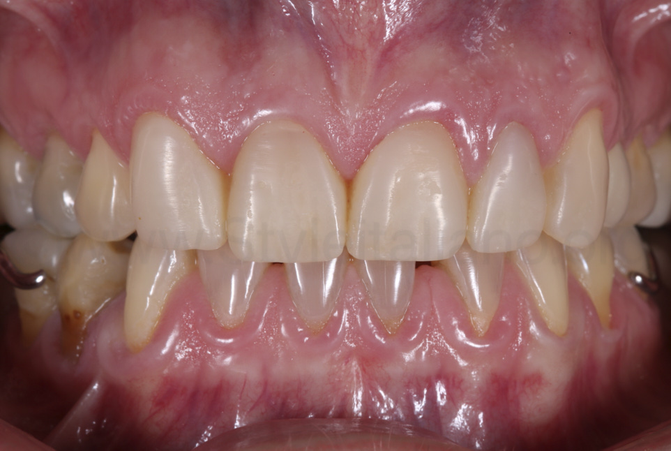 modified shape of canine into lateral incisor with minimal preparation