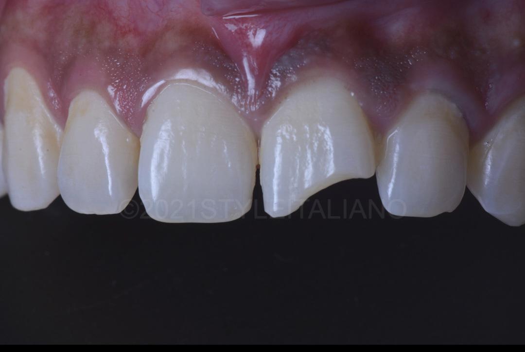 broken upper incisor style italiano styleitaliano