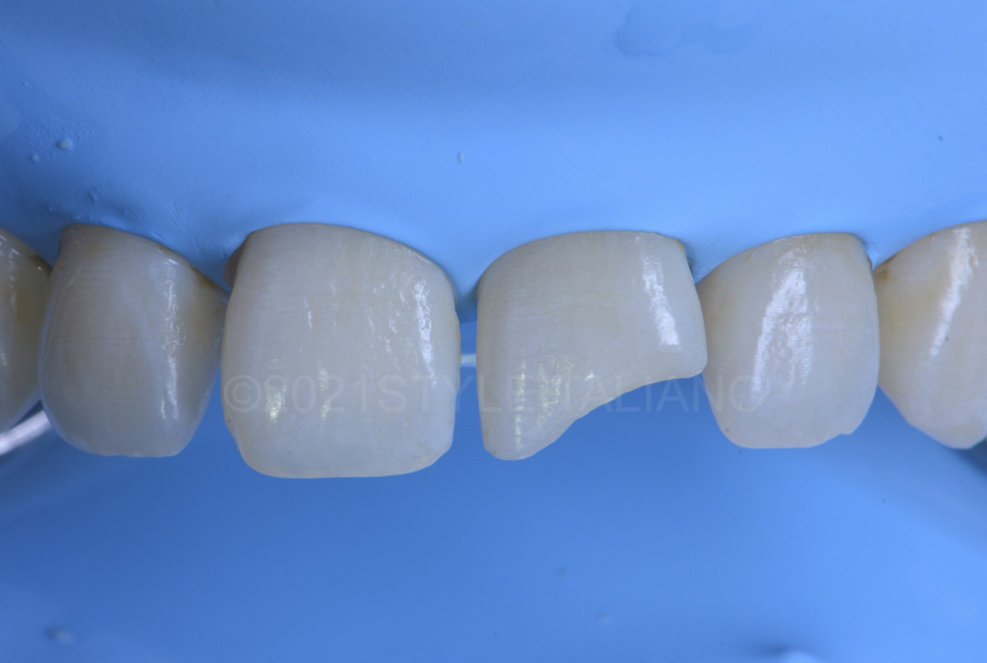 rubber dam isolation before restoring central incisor style italiano styleitaliano