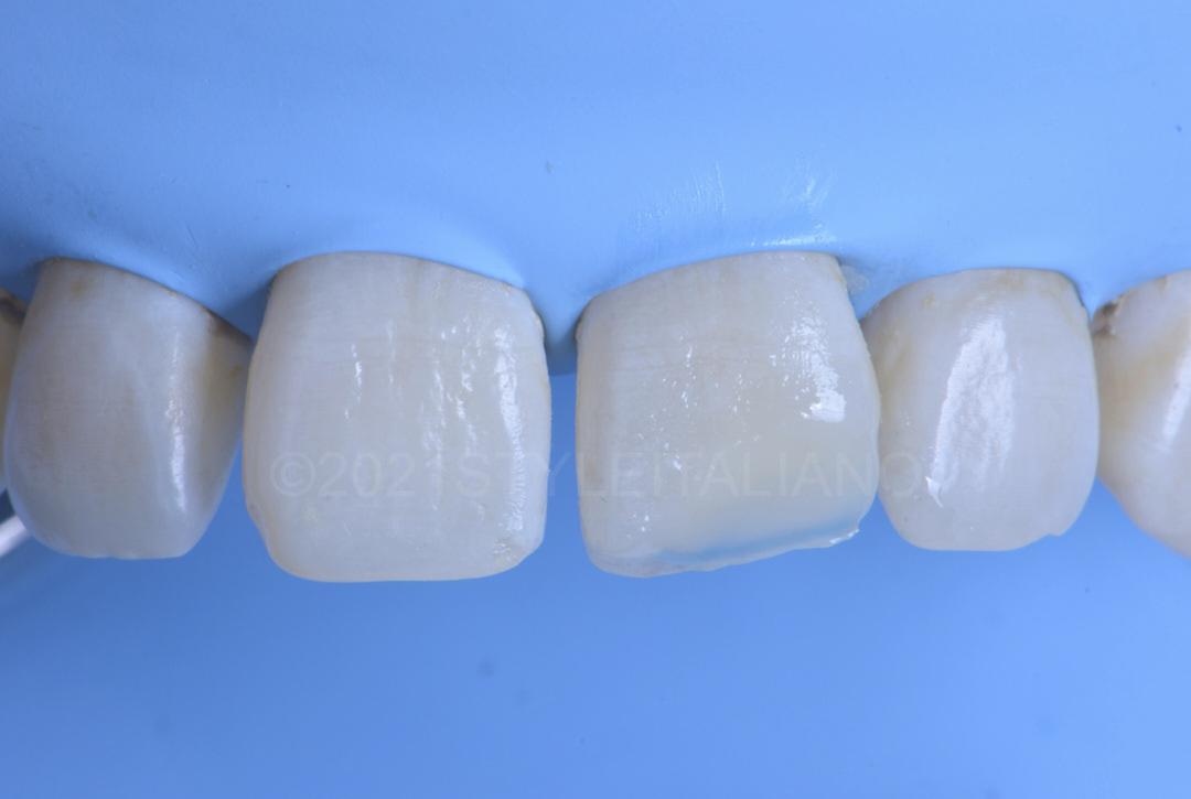layering dentin mass to restore incisor style italiano styleitaliano