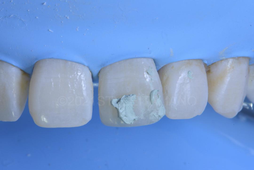 lucida polishing paste on tooth style italiano styleitaliano