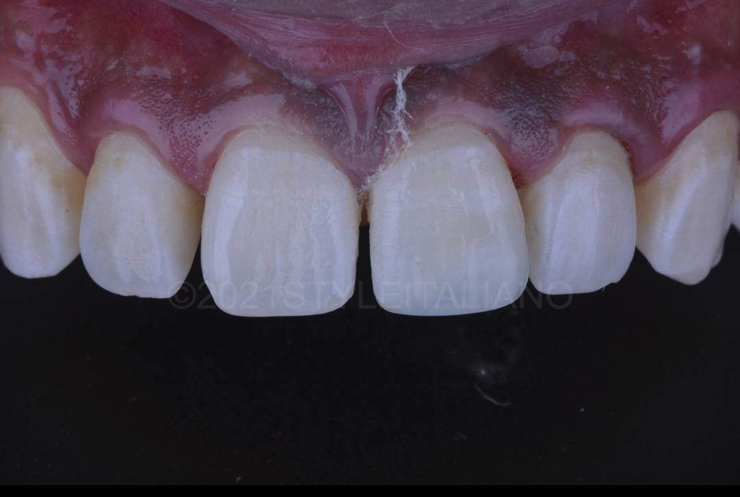 result after restoring upper left central incisor with composite resin style italiano styleitaliano