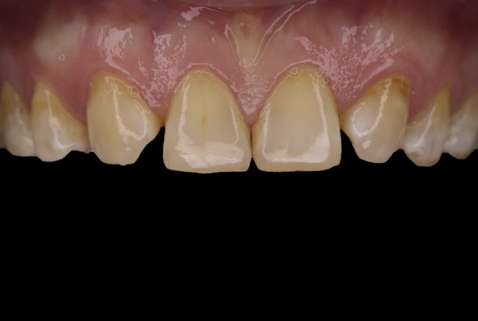 picture showing smile with missing lateral incisors style italiano styleitaliano
