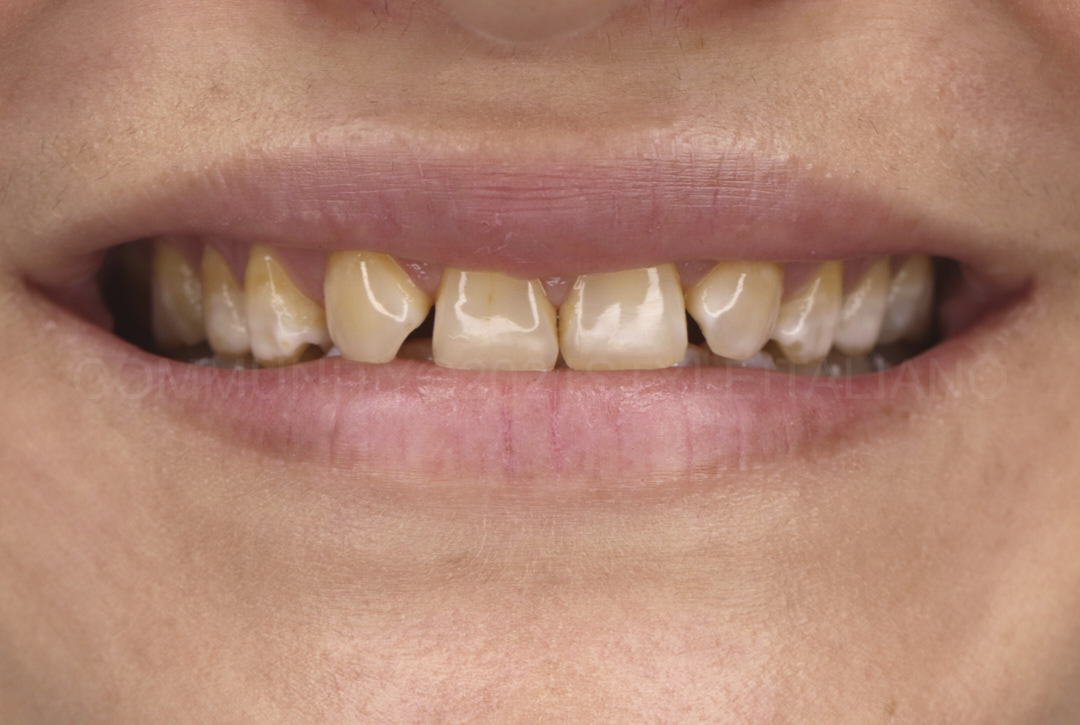 insecure smile with missing lateral incisors style italiano styleitaliano
