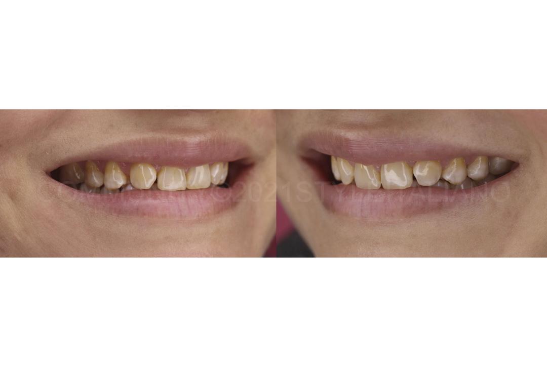 smile before esthetic dental treatment style italiano styleitaliano