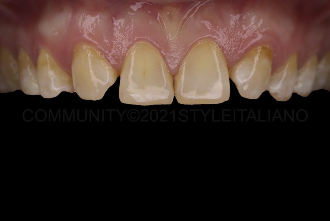 picture showing smile with missing lateral incisors styleitaliano style italiano