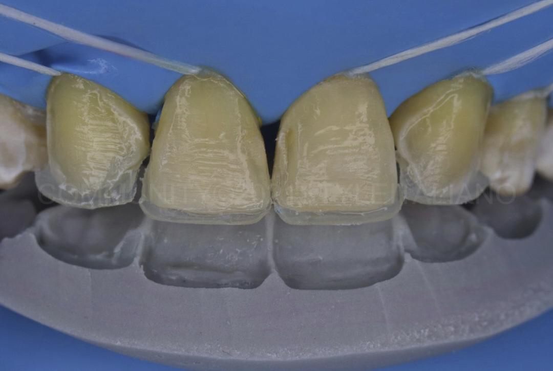palatal shells built using silicone index style italiano styleitaliano