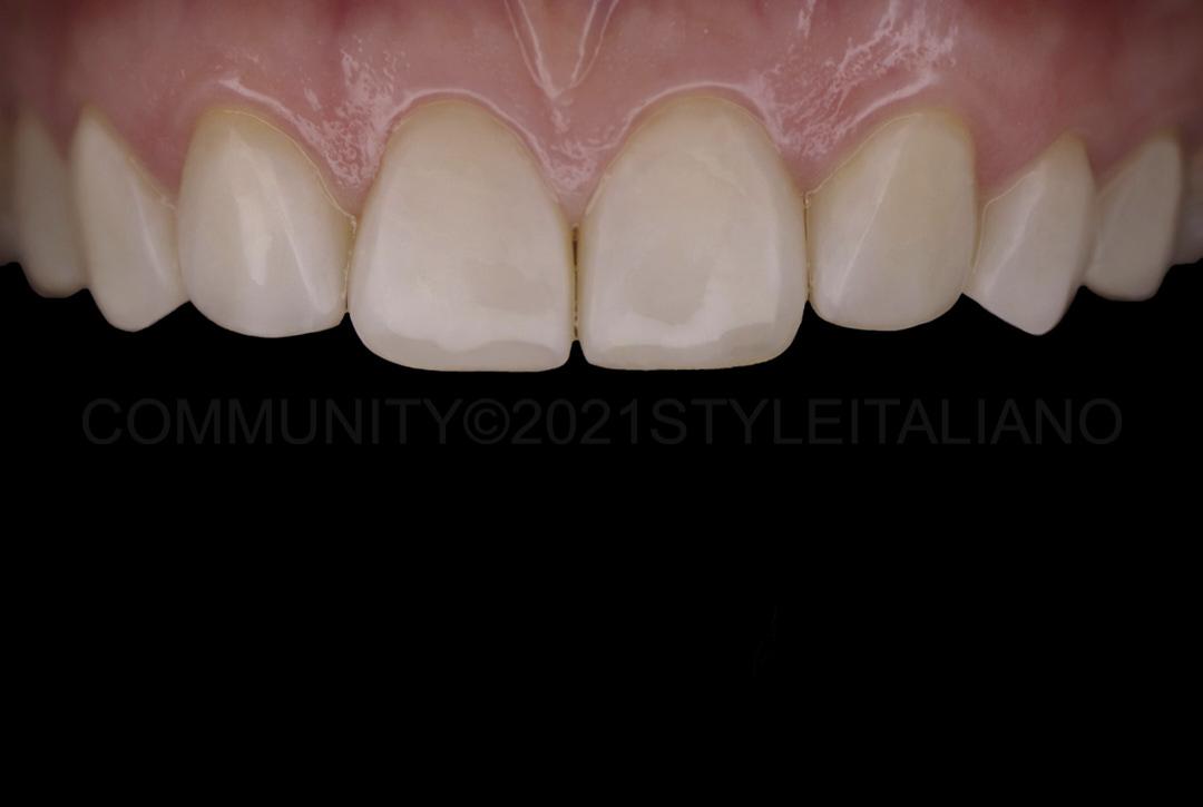 polished direct composite veneers style italiano styleitaliano
