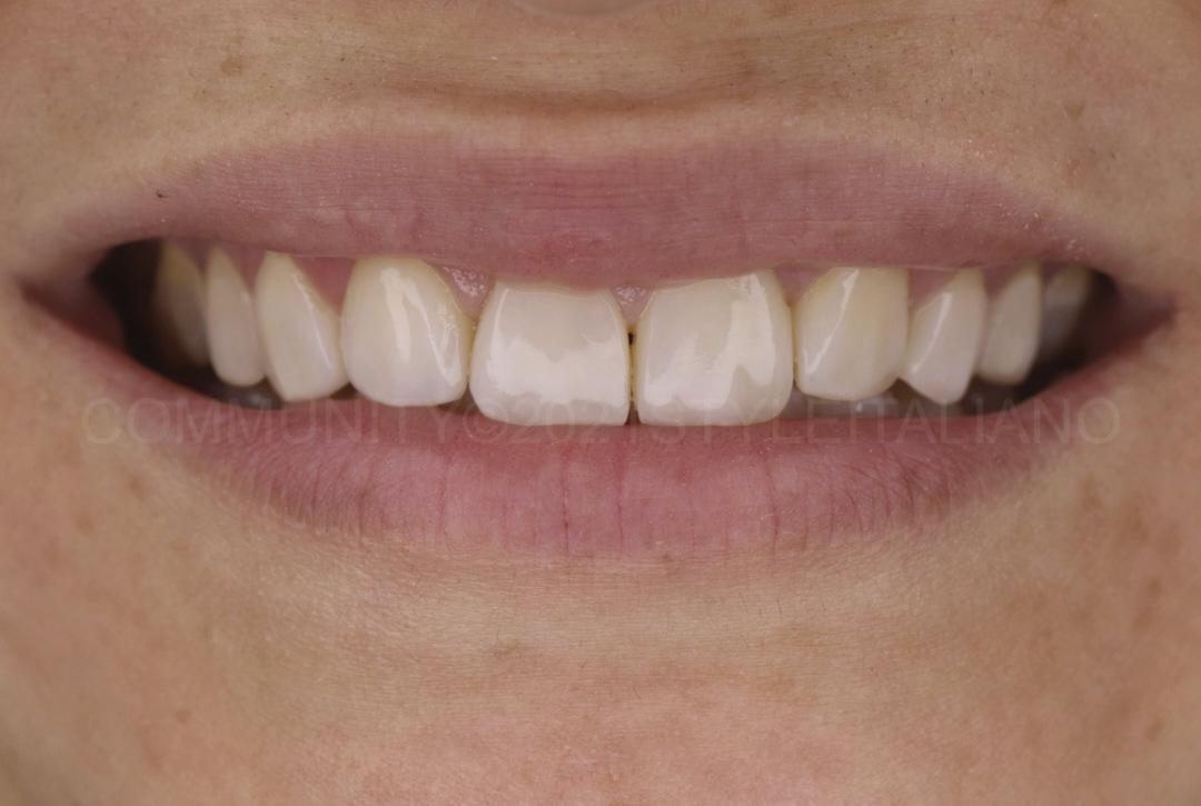 smile with new composite veneers style italiano styleitaliano