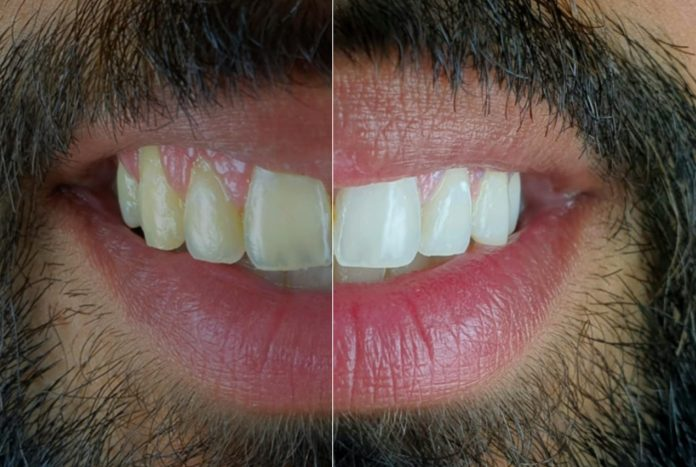 before and after bleaching with white dental beauty styleitaliano style italiano