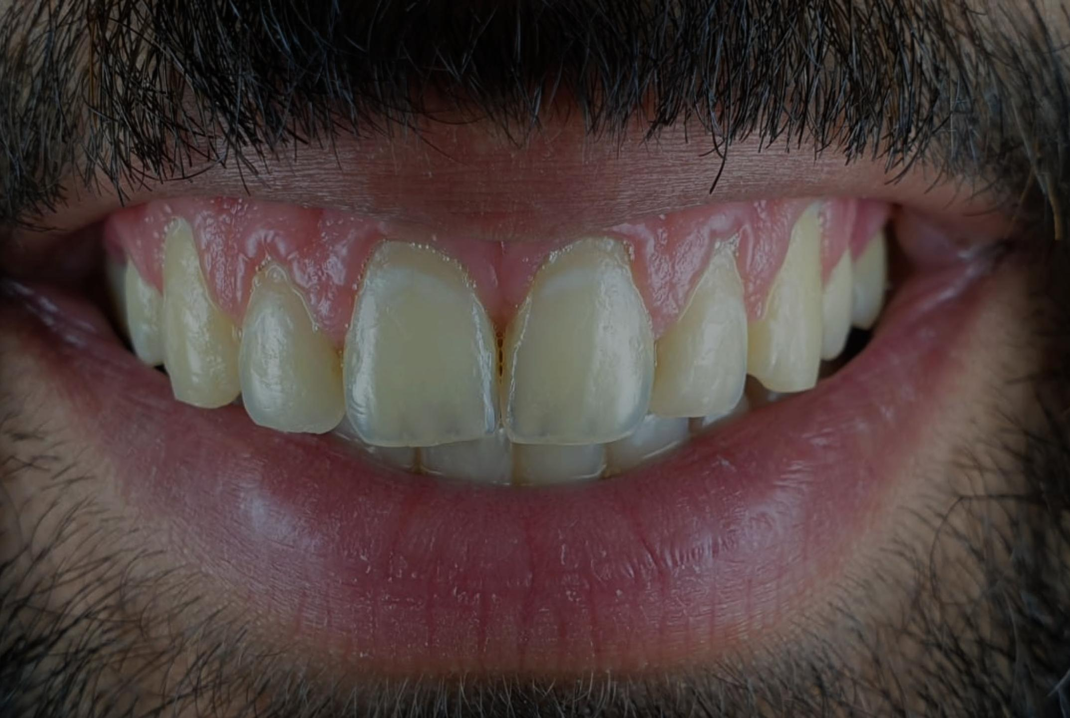 patient with yellow teeth asking to improve tooth color style italiano styleitaliano