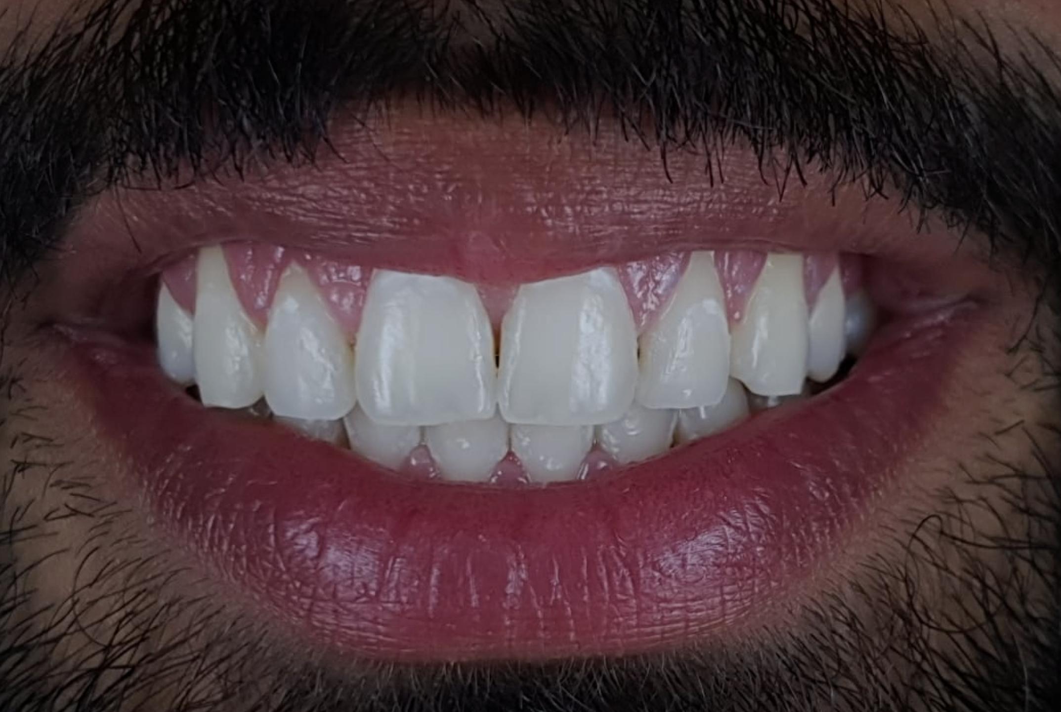 patient happy with dental whitening white dental beauty style italiano styleitaliano